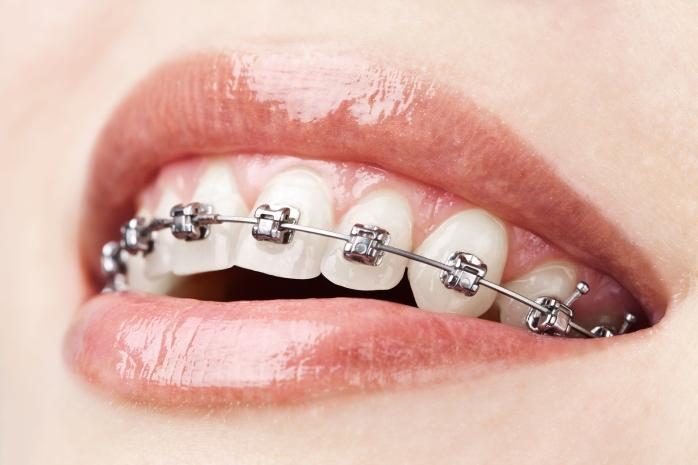 braces DIY